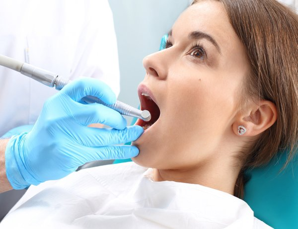 root canal St. Louis